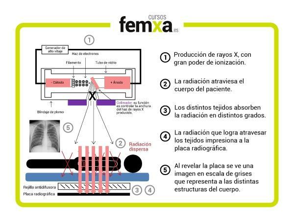 funcionamiento de un aparato de rayos X