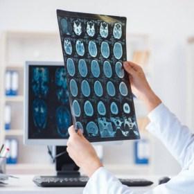 Iniciación a la tomografía computarizada - Aliad